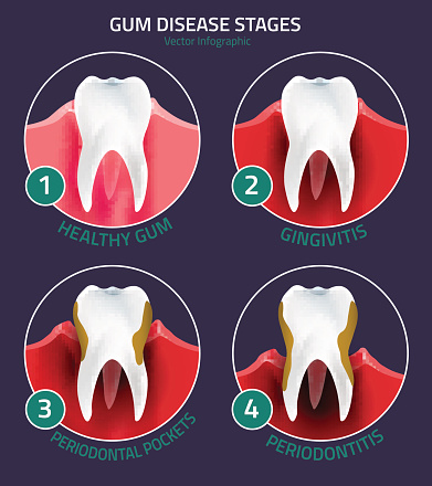 Diagram of the stages of gingivitis and gum disease from Dentistry with Smiles
