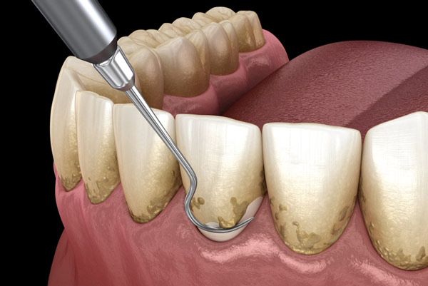Example of scaling and root planing procedure for treating gum disease